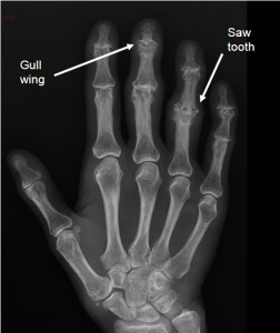 Typical X-ray features of EOA showing Gull wing and Saw tooth erosions on plain radiographs.