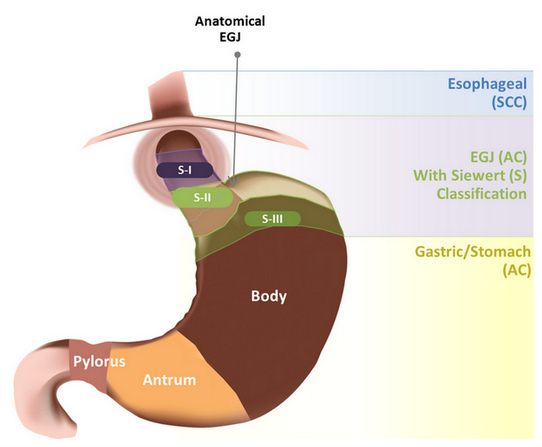 Gastroesophageal Cancer: Focus on Epidemiology, Classification, and ...