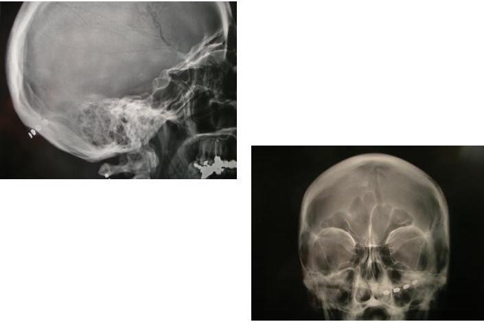Back Nerve Stimulator Peripheral Nerve Stimulation