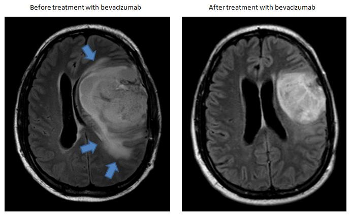 Advances and Challenges in the Treatment of Glioblastoma: A