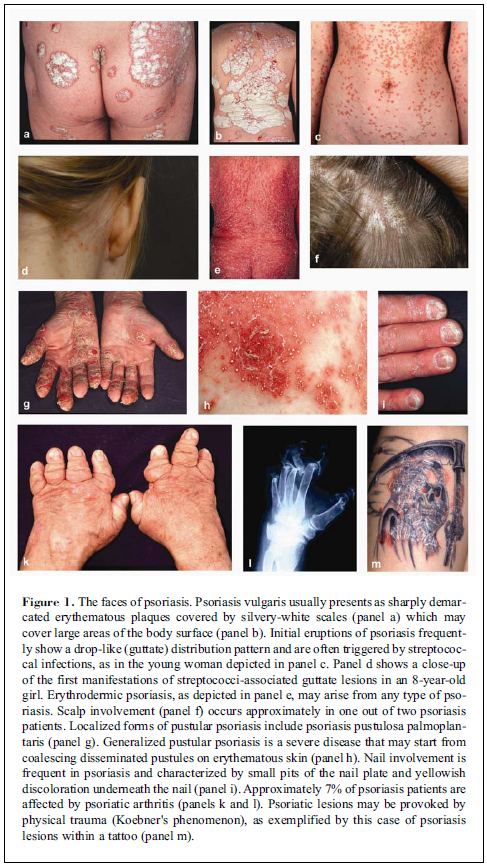 There are 5 main types of psoriasis 3