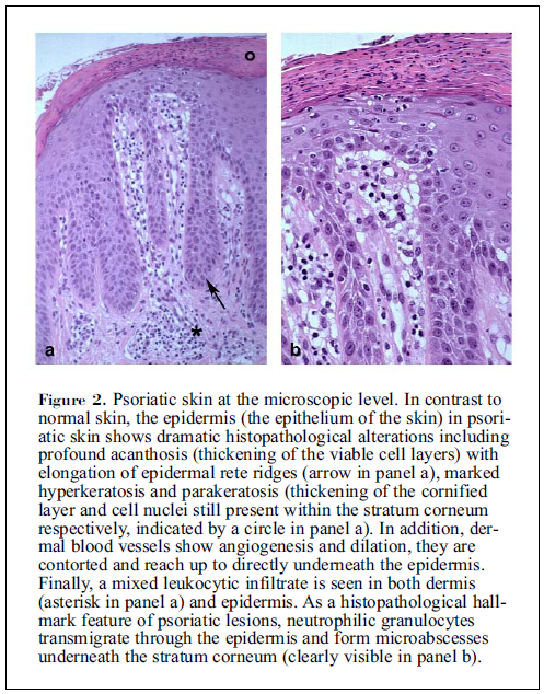 Psoriasis--epidemiology and clinical spectrum 2